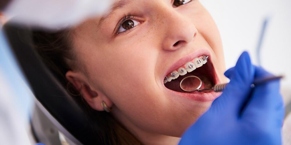 Ortodonti (Diş Teli) Tedavisi ve Diş Sağlığı